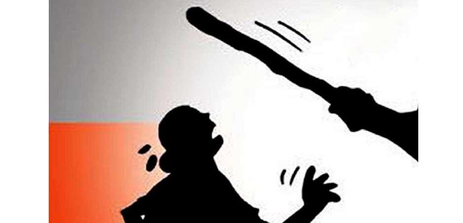 काठमाडौंमै बोक्सी आरोपमा महिलामाथि निर्घात कुटपिट
