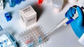 देशैभरी कोरोना परीक्षण घट्यो, ३४ प्रयोगशालाको नतिजा शून्य